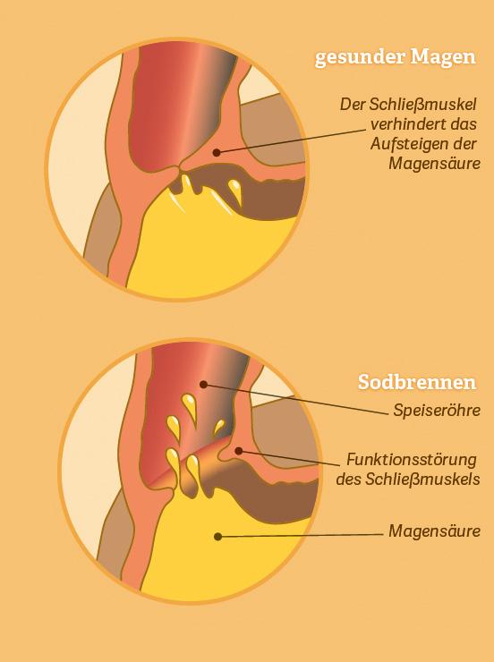 Grafik: Sodbrennen. Quelle: Medienservice GmbH, 2018